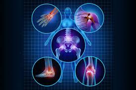 วามเจ็บปวดสัมพันธ์กับความสามารถในการเคลื่อนไหวลดลงซึ่งอาจนำไปสู่ความไม่สามารถเคลื่อนไหวได้มันได้รับการรักษาด้วยยาแก้ปวด, ยาแก้อักเสบและเหนือสิ่งอื่นใดด้วยการบำบัดทางกายภาพ (ยิมนาสติก, การนวด, ฯลฯ );ในรูปแบบที่ทันสมัยที่สุดอาจจำเป็นต้องหันไ