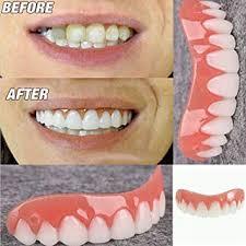 Perfect Smile Veneers - ของ แท้ - สั่ง ซื้อ - หา ซื้อ ได้ ที่ไหน