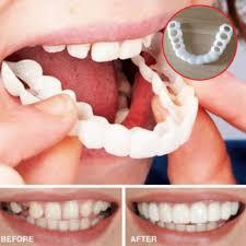 Perfect Smile Veneers - วิธี ใช้ - Thailand - ราคา