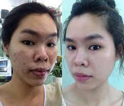 Azalia Anti-Acne MaxClear Skin - เกี่ยวกับความไม่สมบูรณ์ของผิว - ราคา เท่า ไหร่ - ผลกระทบ - lazada