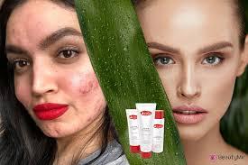 Azalia Anti-Acne MaxClear Skin - เกี่ยวกับความไม่สมบูรณ์ของผิว - สั่ง ซื้อ - พัน ทิป - รีวิว