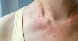 Breathe Clean Bite Mites - สั่ง ซื้อ - ดี ไหม - lazada