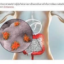 D-Keronic - สำหรับปัญหากระเพาะอาหาร – pantip – พัน ทิป – วิธี ใช้
