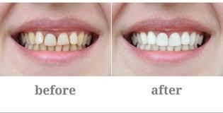 Snowhite Teeth Whitening - การฟอกสีฟัน – ราคา เท่า ไหร่ – ดี ไหม – วิธี ใช้