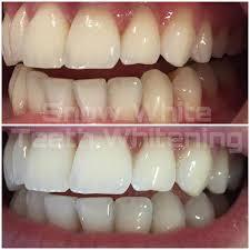 Snowhite Teeth Whitening – พัน ทิป – หา ซื้อ ได้ ที่ไหน – lazada